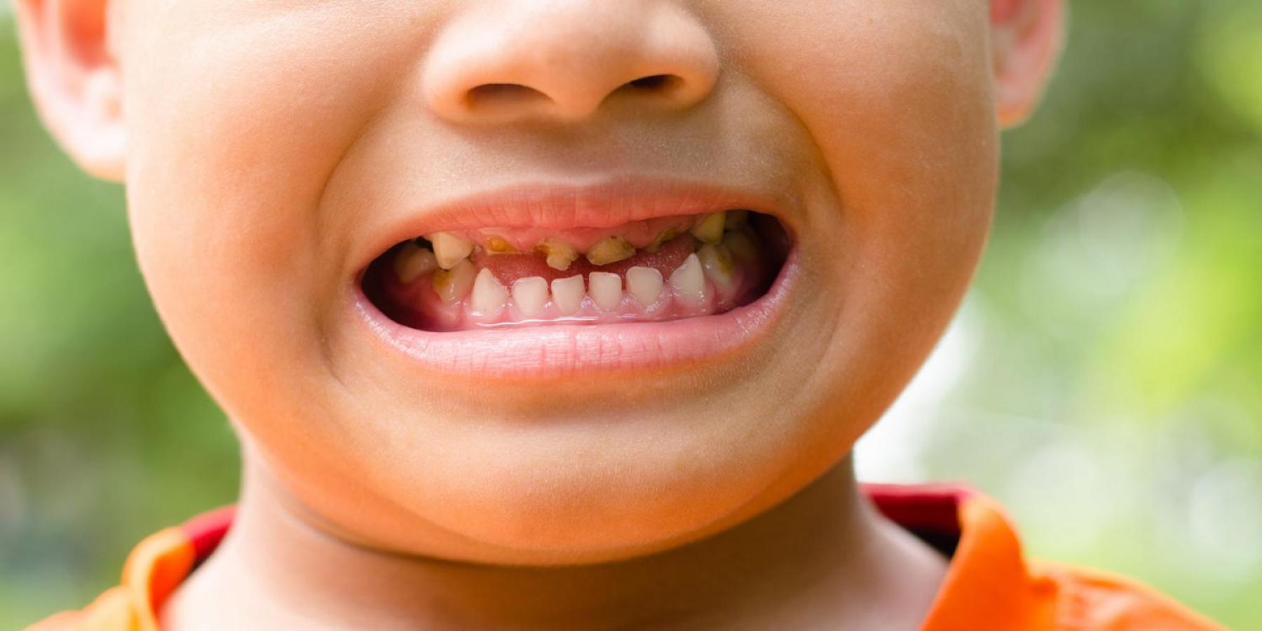 How 54 young teeth horrified a dentist, and motivated leaders to