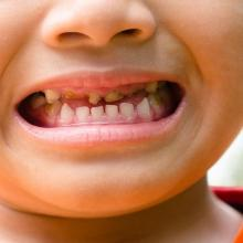 How 54 young teeth horrified a dentist, and motivated leaders to treat sugar as the new tobacco